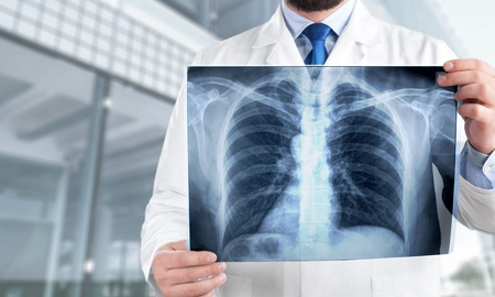 Young man doctor holding x-ray