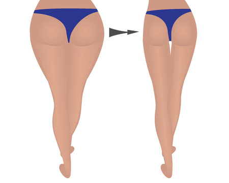 buttocks of women. Fat and slim. weight loss. fitness. comparison. vector