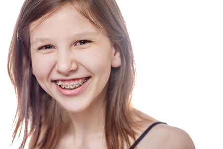 Photo pour Laughing teen girl wearing braces looking at camera isolated on white - image libre de droit