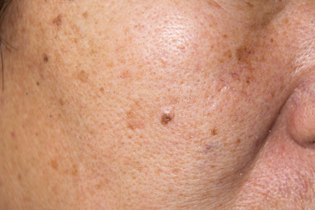 Close up Dry face skin with freckles, melasma, acne