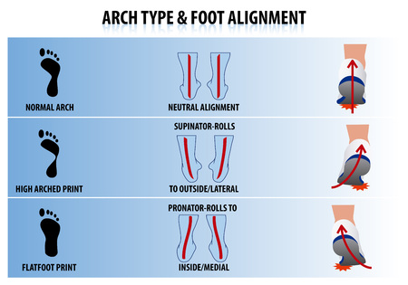 Illustration for Arch Type and Foot Alignment - Royalty Free Image
