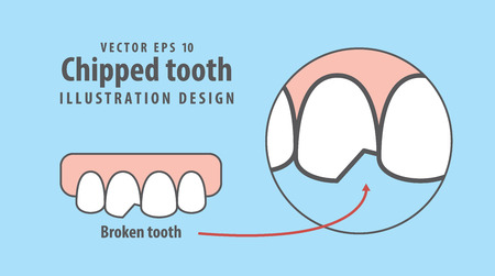 Chipped tooth illustration vector on blue background. Dental concept.