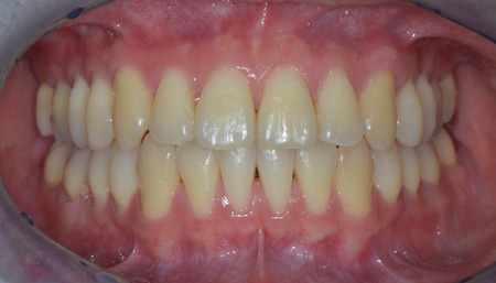 Intraoral photo