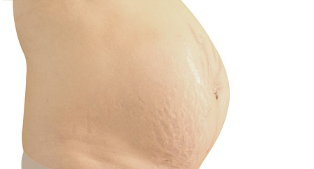 Closeup of a pregnant belly with stretch marks. Isolated on white