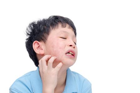 Photo pour Young asian boy scratching his allergy face - image libre de droit