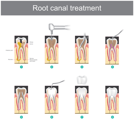 Illustration pour Root canal treatment. How to treat our teeth after the tooth is damaged. or severe caries as causes infection or inflammation - image libre de droit