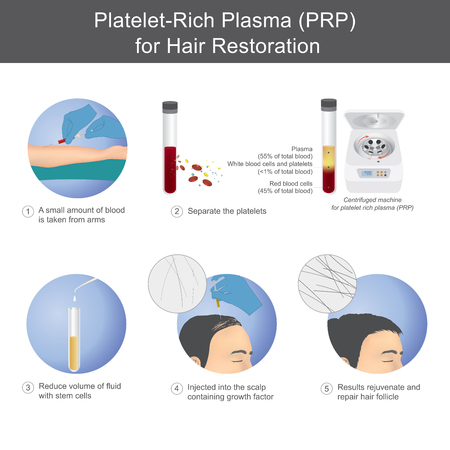 Illustration for Stimulation of hair growth by using blood from service recipients through the process of separating platelet rich plasma, To be injected onto the scalp. - Royalty Free Image