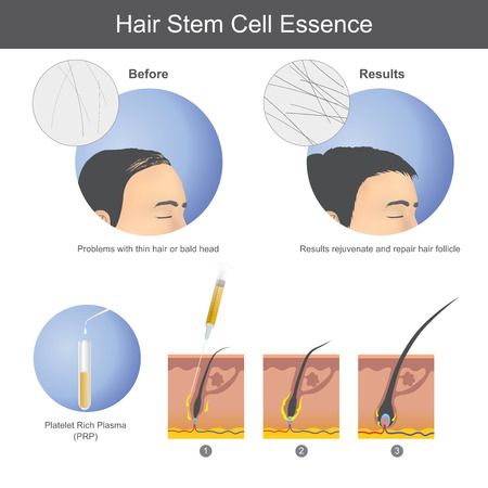Illustration for Stimulating hair growth using platelet rich plasma (PRP) to inject onto the scalp until it penetrates to the hair root. Infographic health care. - Royalty Free Image