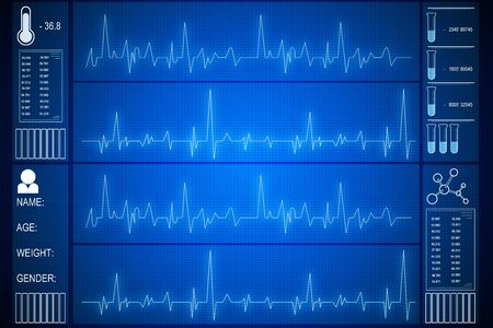 Photo pour Creative glowing heartbeat hologram on blue background. Medicine and cardiology concept. 3D Rendering - image libre de droit
