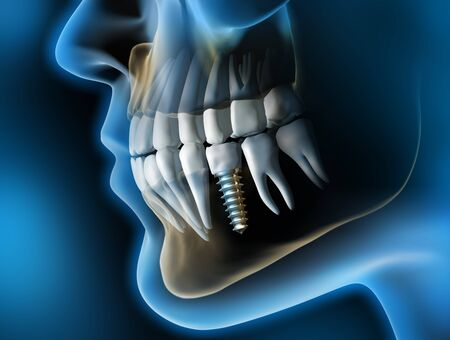 Photo pour Head with dental implant - 3D illustration - image libre de droit