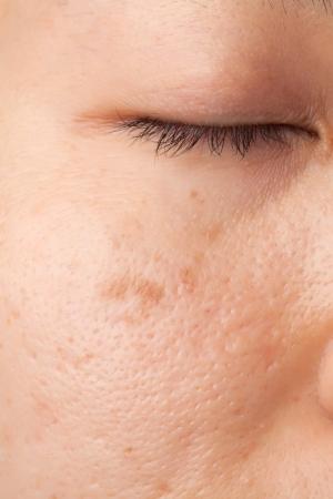 Photo pour Women with scar and skin problem - image libre de droit