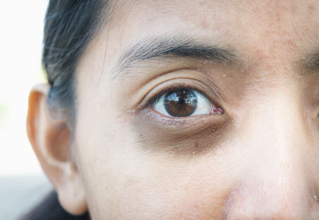 Photo pour Dark circles around eye. - image libre de droit