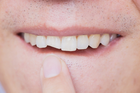 Photo pour Male broken teeth damaged cracked front tooth need dentist to fix and repair. - image libre de droit