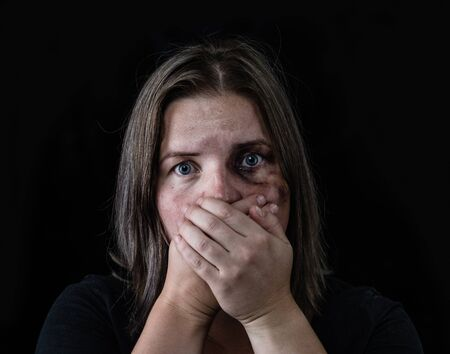 Photo for Young beaten up woman looking at camera and covered her mouth with her hands. Isolated on dark background. - Royalty Free Image