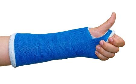 Photo pour Broken arm - thumb up - image libre de droit