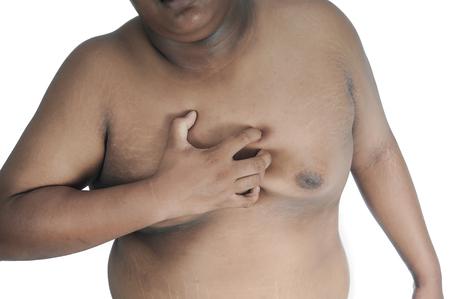 Photo pour Fat man chest pain because of obesity. - image libre de droit