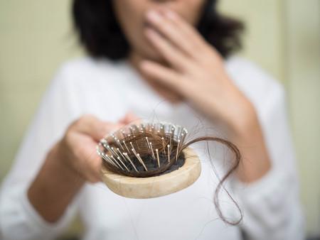 Foto de Hair loss problem - Imagen libre de derechos