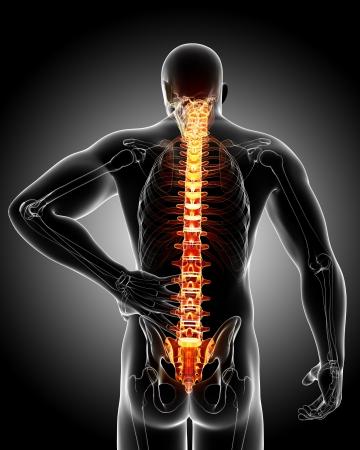 Photo pour back pain in black - image libre de droit