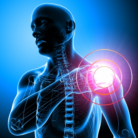 Shoulder pain of male in blue