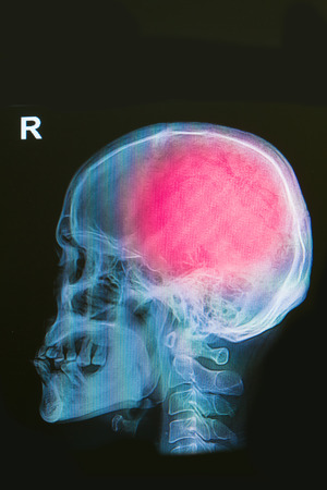 x-ray image of human skull show head injury