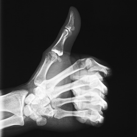 X-ray of thumb up