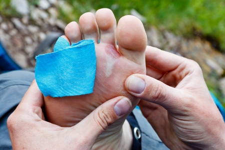 A hiker is inspecting a foot blister