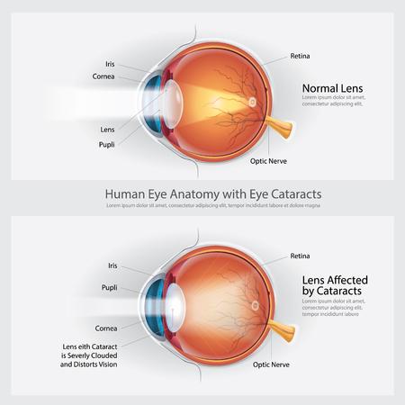 Ilustración de Cataracts Vision Disorder and Normal Eye Vision Anatomy Vector illustration - Imagen libre de derechos