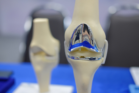 artificial knee joint model after replacement surgery