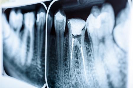 Foto für Obturation of Root Canal Systems On Teeth X-Ray - Lizenzfreies Bild