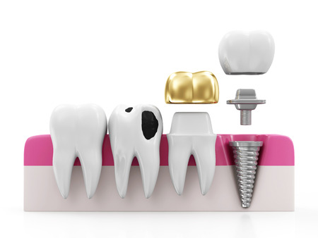 Dentistry Concept. Health Tooth, Teeth with Caries, Golden Dental Crown and Implant isolated on white background