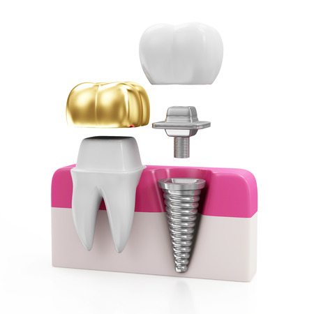 Dentistry Concept. Tooth with Golden Dental Crown and Dental implant isolated on white background