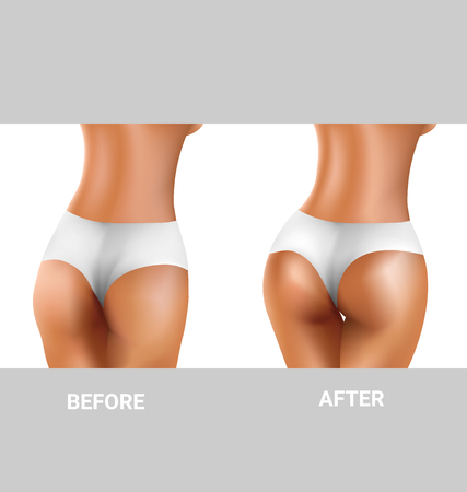before and after sexy buttocks exercise