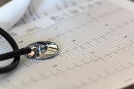 Foto de Medical stethoscope on ECG exam graph - Imagen libre de derechos
