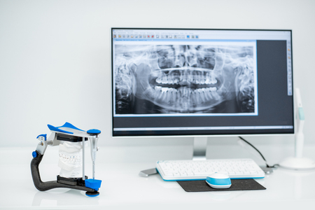 Foto de Working place with computer and artificial jaw in the dental office - Imagen libre de derechos