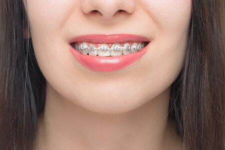 Photo for Young woman smile with dental braces. Brackets on the teeth after whitening. Self-ligating brackets with metal ties and gray elastics or rubber bands. Orthodontic teeth treatment. - Royalty Free Image
