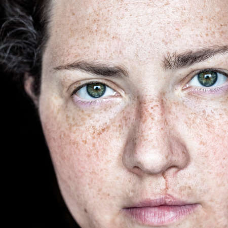 Photo for Closeup Portrait of Caucasian Woman with Freckles and Cleft Lip Looking Directly at Camera - Royalty Free Image