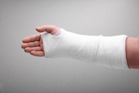 Photo pour broken arm bone in cast  - image libre de droit