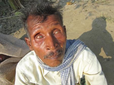 BLIND MAN.SHOT AT VAISHALI, BIHAR, INDIA: AFTERNOON HOURS ON NOVEMBER 20,2012.