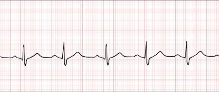 Normal electronic cardiogram vector illustration