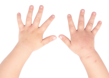 Photo pour swollen and healthy baby hands isolated on white background - image libre de droit