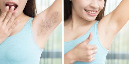 Photo pour asia beauty woman with armpit plucking problem before and after - image libre de droit