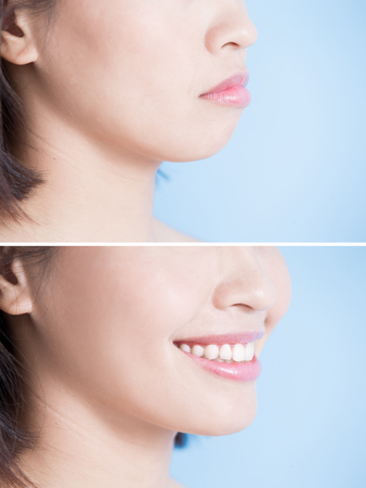 Photo pour close up of surgery woman with tip chin before and after on the blue background - image libre de droit