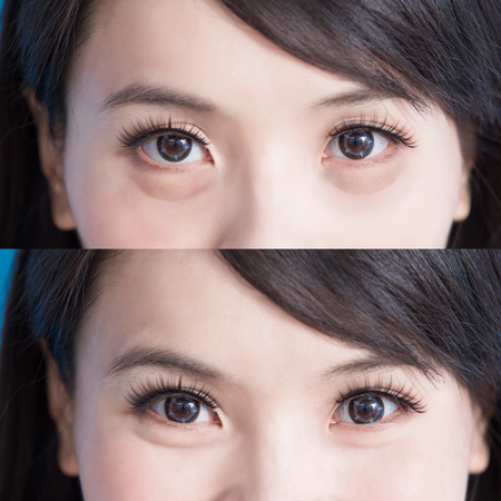 Foto de woman eye bags vefore and after on the blue background - Imagen libre de derechos