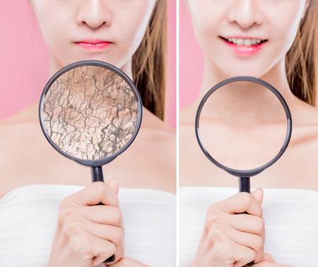 Photo pour woman take magnifying on neck with dry skin - moisturizing care concept - image libre de droit