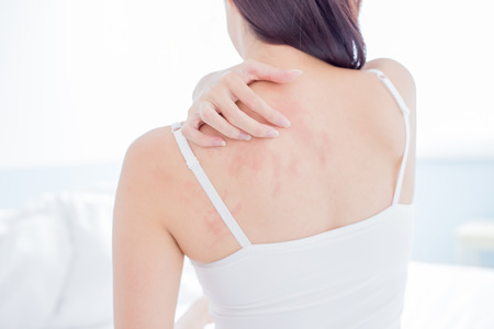 Photo pour woman scratching her shoulder and neck because of dry skin at home - image libre de droit