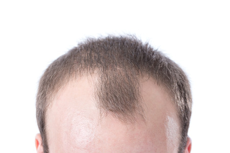 A white male with brown hair's receding hairline on a white background.