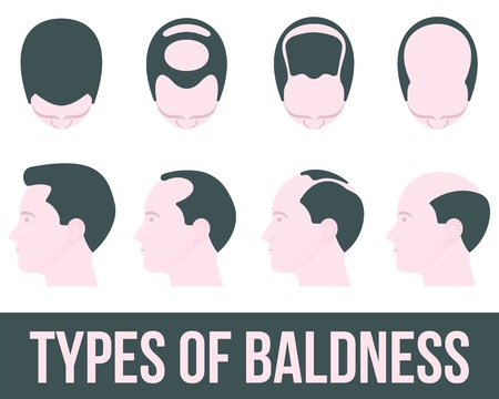 Illustration for Stages of hair loss and hair treatment, vector illustration flat is isolated on a white background, different stages of hair loss, hair treatment and transplontatsiya color, health - Royalty Free Image