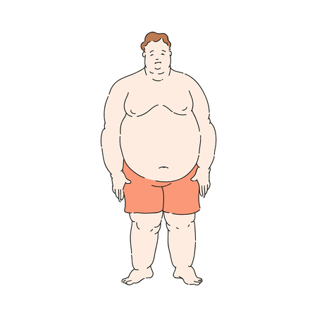 Vektor für Vector overweight obese unhappy man standing topless in shorts. Fat male character with obesity. Excessive weight man. Health problems connected with weight. Isolated illustration - Lizenzfreies Bild