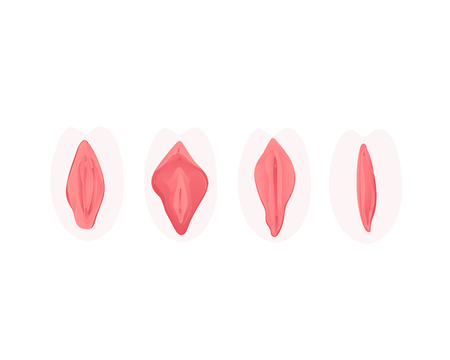 Ilustración de Vector vagina plastic surgery concept with stages of clitoris surgery. Female labia correction. Labiaplasty ro vaginoplasty medical operation. Gynecology and labia lips. Isolated illustration - Imagen libre de derechos