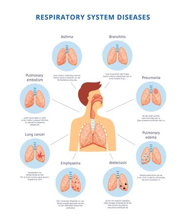 Illustration pour Human respiratory system diseases informative diagram with man body image vector illustration. Anatomy and physiology table for medical and educational institutions. - image libre de droit